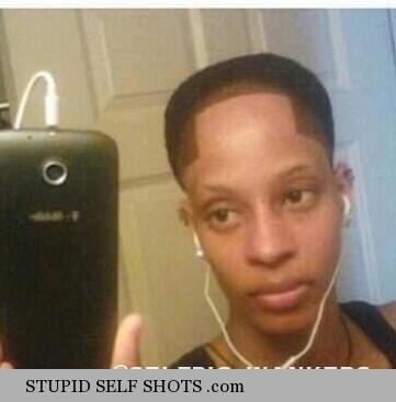 Horrible hairline, self shot