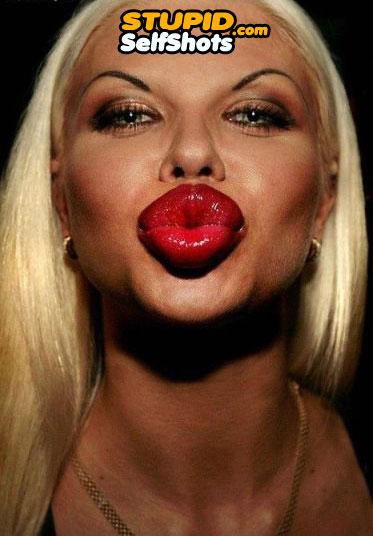 Massive lip implants self shot fail